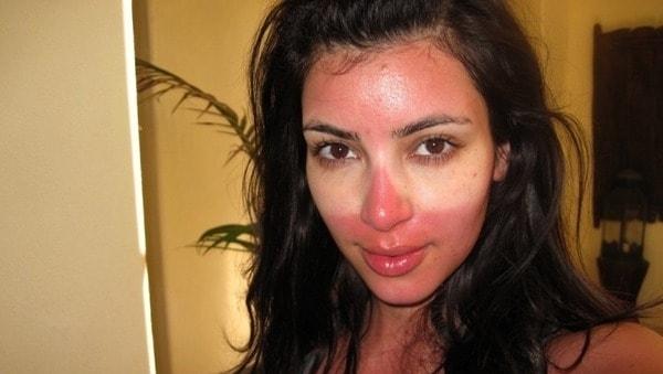 Солнечные ожоги на лице