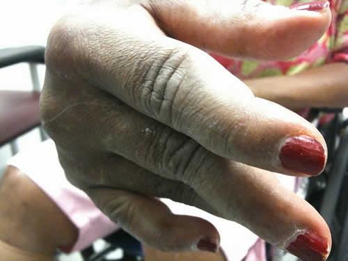 артрит из за курения