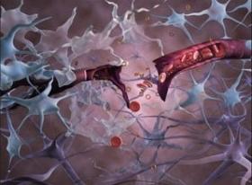 Альцгеймер и Паркинсон: победа близко?