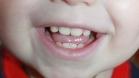 Пятна на зубах ребенка
