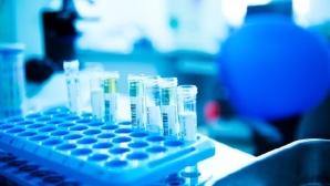 Ученые пообещали узнать все факторы риска рассеянного склероза