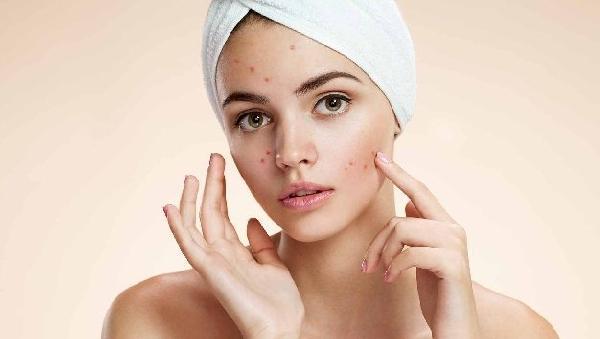Домашняя «косметика» опасна для вашей красоты