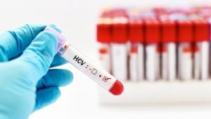 Как диагностировать гепатит С?