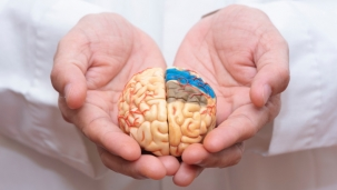 Разработана первая нейромодель прионной инфекции