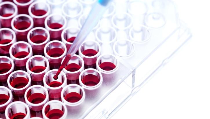 Немецкие ученые «расшифровали» рассеянный склероз