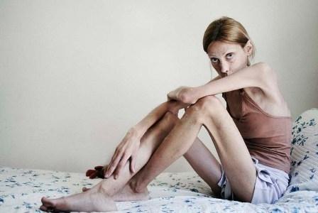 Анорексия: еще одна жертва