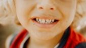 Кариес молочных зубов: кратко о сути  проблемы