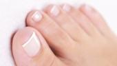 Грибок ногтей: лечение