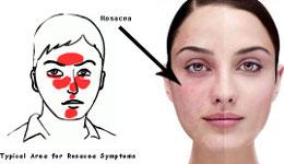 Симптомы розацеа (розовых угрей) акне лечение