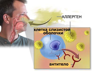 Аллергический ринит может привести к синусопатии