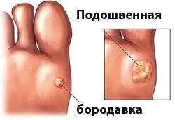 Детские клиники по удалению бородавок