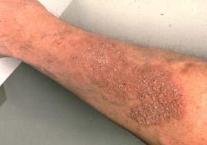 Причина варикозного расширения вен на ногах