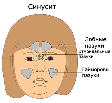 Кариес детских зубов лечение в