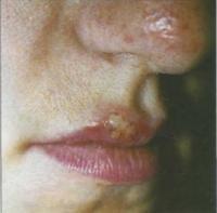 Герпес на лице