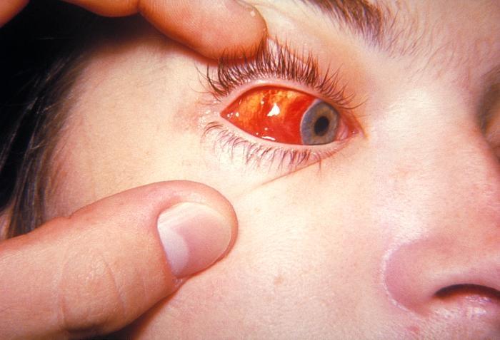 Кровоизлияние фото
