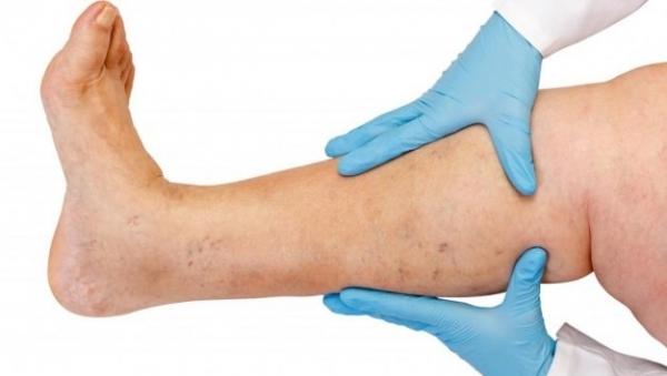 Операция по удалению варикозных вен на ногах